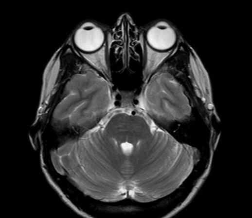 МРТ глазных орбит и зрительных нервов