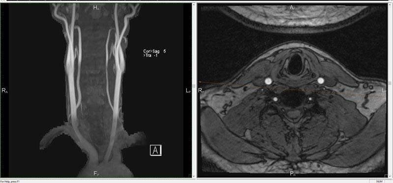 МРТ артерий шейного отдела позвоночника