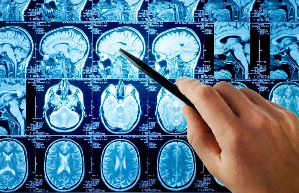 МРТ головного мозга и головы с контрастом
