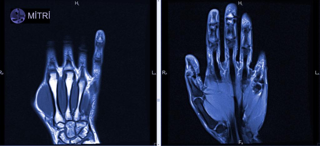 МРТ лучезапястного сустава
