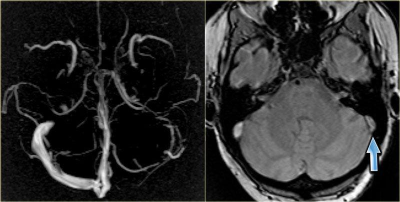 МРТ венозных синусов головного мозга