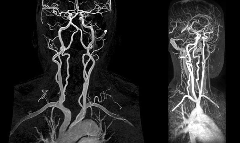 Проведение МРТ артерий шеи позволяет диагностировать такие заболевания и патологии, как: васкулит; стеноз сосудов; атеросклероз; сосудистая опухоль; аномалии строения сосудов. Диагностика МРТ артерий шеи не имеет аналогов по информативности и безопасности, но применять этот метод можно только в том случае, если в теле пациента нет металлических пластин или медицинских устройств, таких как кардиостимулятор. Никакой предварительной подготовки проводить перед МРТ артерий шеи не требуется.