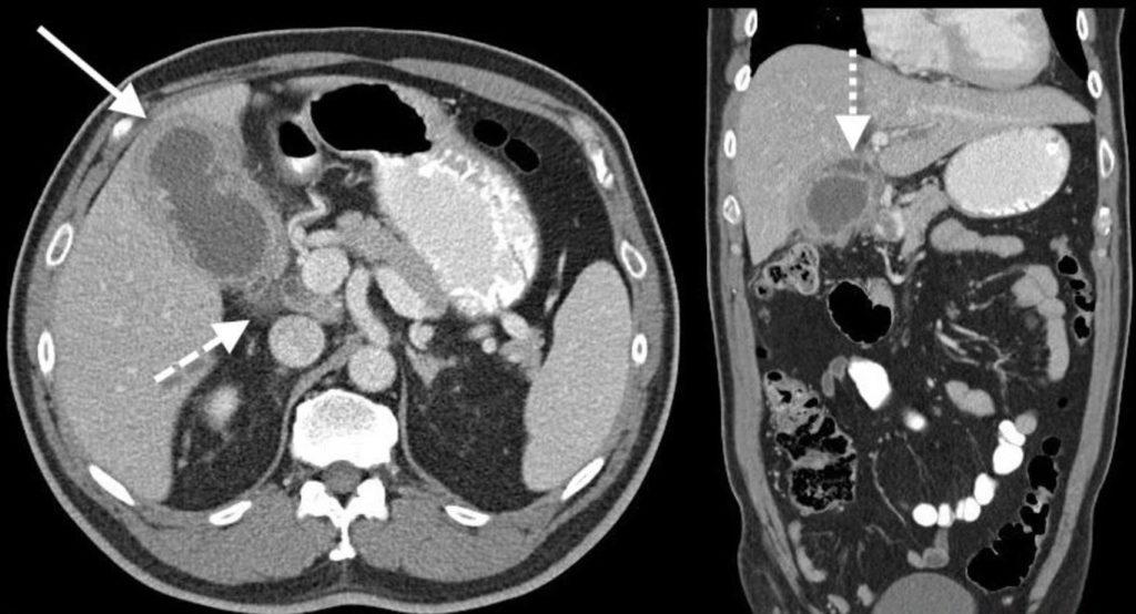 МРТ желчного пузыря