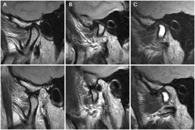 МРТ височно-нижнечелюстных суставов